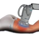 L'IPERTERMIA – L'ultima frontiera in Fisioterapia