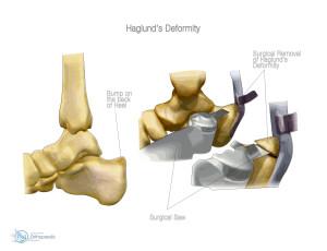 Rimozione chirurgica dell'esostosi