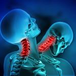 Il Colpo di Frusta: dalla Classificazione alla Fisioterapia