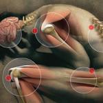 Trigger Point e Dolore Muscoloscheletrico