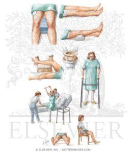 fisioterapia albano laziale ciampino