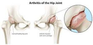 artrosi anca Fisioterapia albano laziale