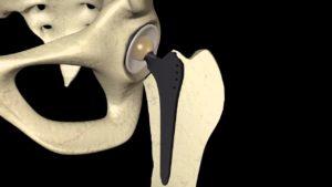 artroprotesi fisioterapia