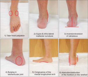foot posture index italiano