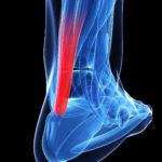 Tendinopatia Achillea: guida completa alla diagnosi ed al trattamento