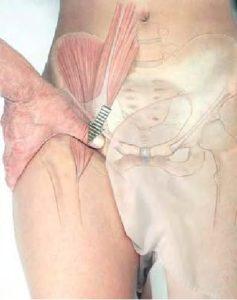 massaggio lesione ileopsoas