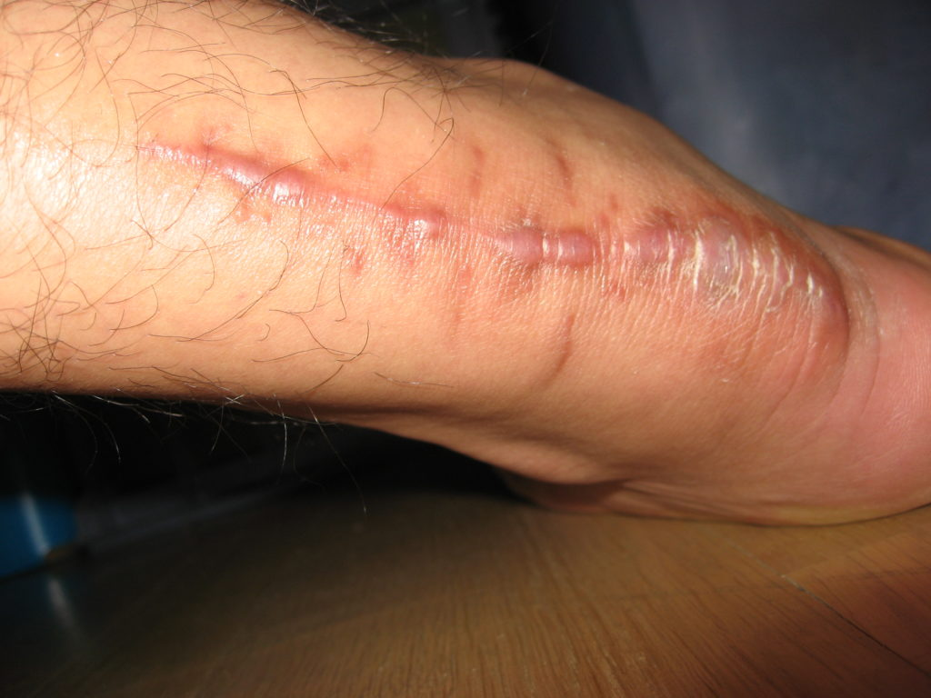 Trattamento chirurgico della rottura del tendine di Achille - Fisioterapia  Albano Laziale