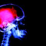 5 Miti sul Dolore Cronico: perché non è tutto nella tua testa